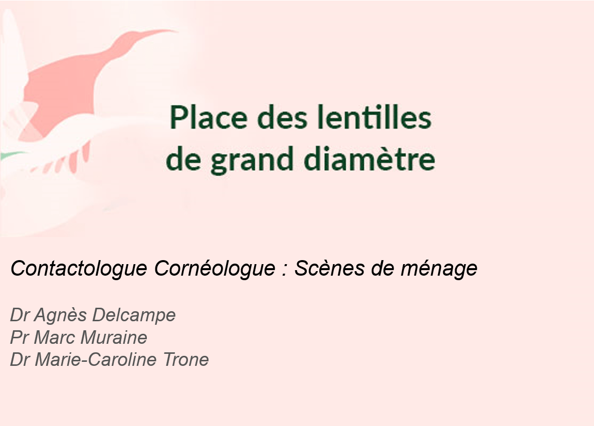 Photo de l'article - Symposium Menicon – Contactologue Cornéologue : Scènes de ménage
