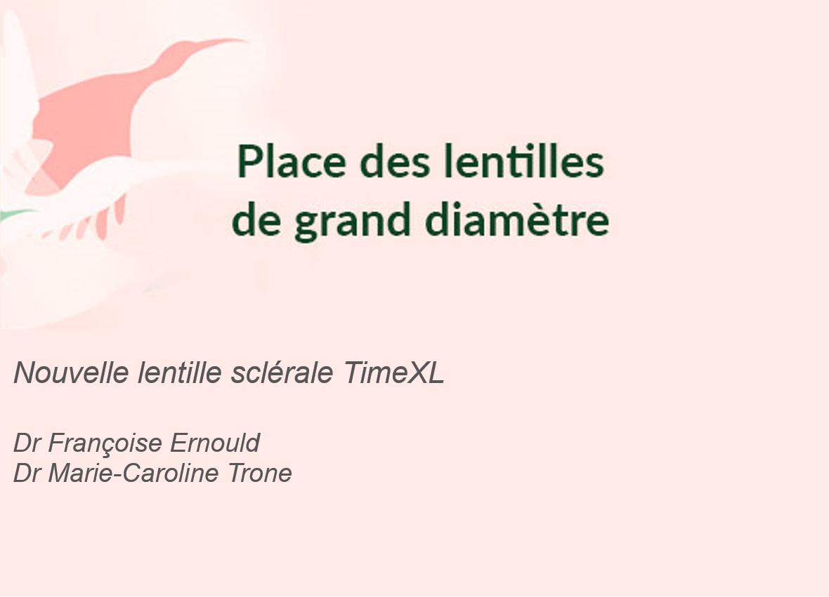 Photo de l'article - Symposium Menicon : Nouvelle lentille sclérale TimeXL