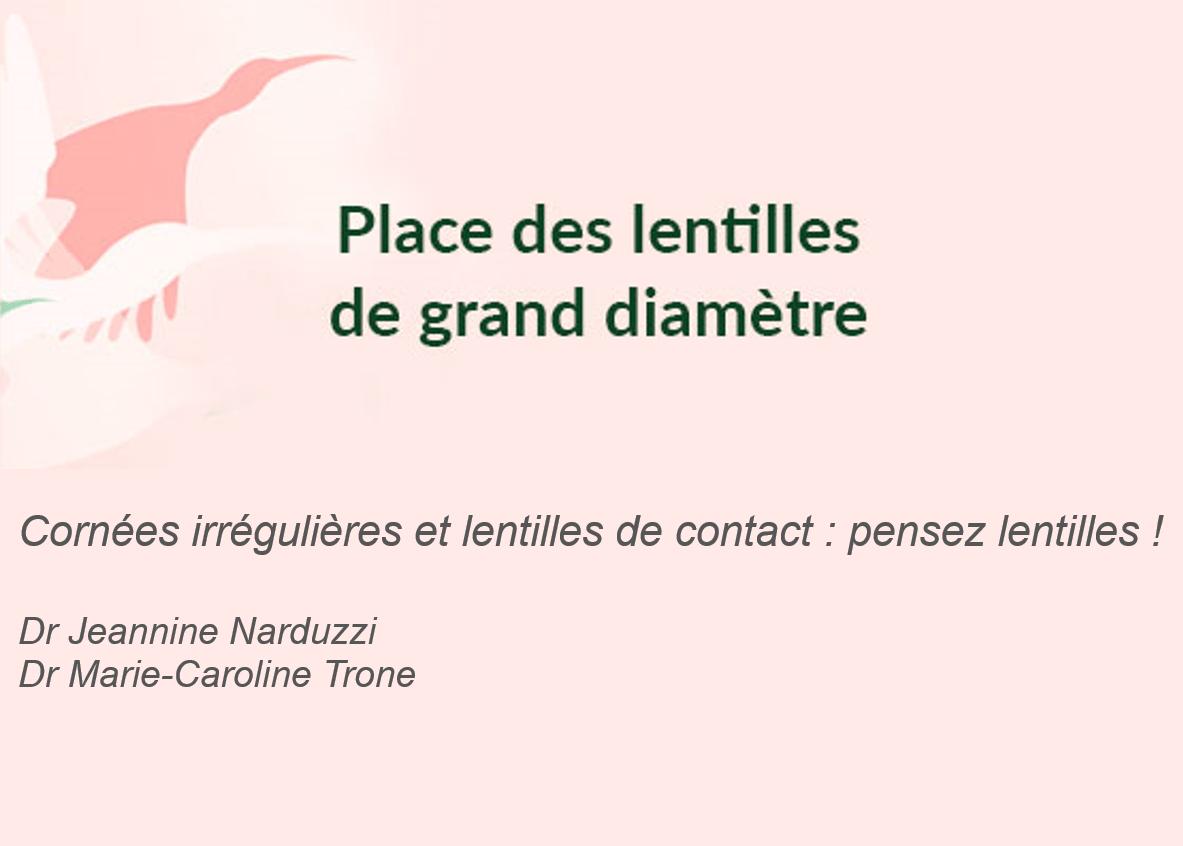Photo de l'article - Symposium Menicon – Cornées irrégulières et lentilles de contact : pensez lentilles !